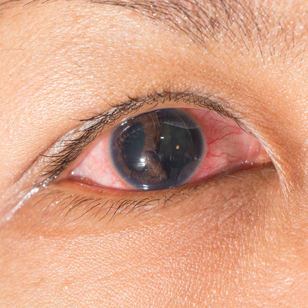 Close up of the blunt injury with cyclodialysis during eye examination. photo