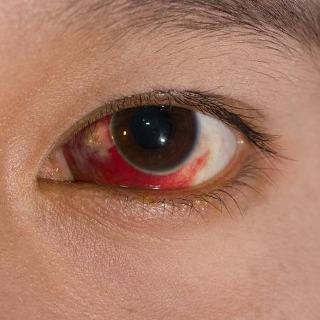 hemorragia: Cerca de la gran Hemorragia conjuntival sub durante el examen de los ojos.
