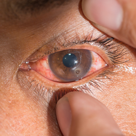 impair: Close up of the metallic foreign body on cornea rust ring during eye examination. Stock Photo
