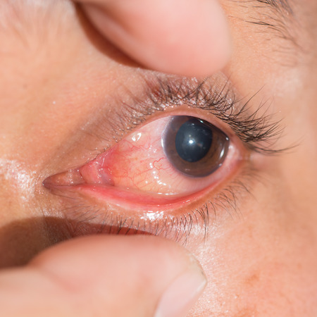 Close up of the chemosis conjunctivitis during eye examination. Stock Photo
