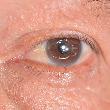 impair: close up of the anterior intra ocular lens during eye examination.
