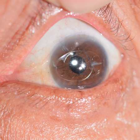 senile: close up of the anterior intra ocular lens during eye examination.
