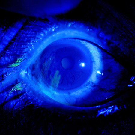 fluorescence: close up of the corneal abrasion under Fluorescence light during eye examination. Stock Photo
