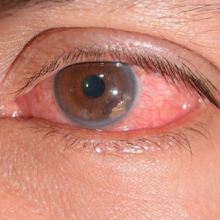 retained: cerca del cuerpo foriegn retenido durante el examen de los ojos.