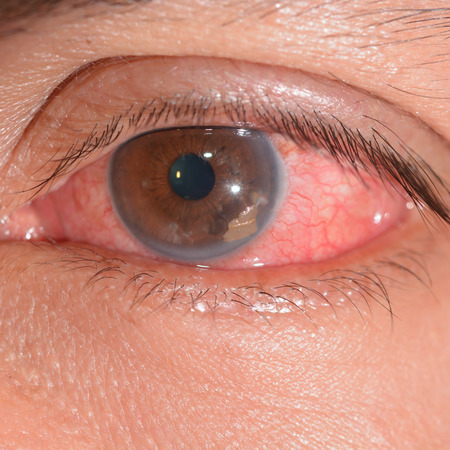 retained: close up of the retained foriegn body during eye examination. Stock Photo