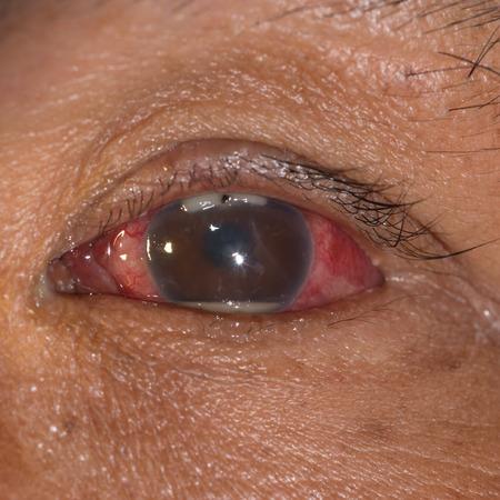 retained: cerca del cuerpo foriegn met�lico retenido con hipopion durante el examen de los ojos.