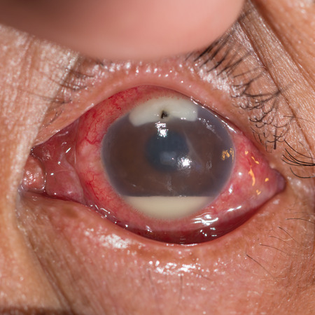 foreign bodies: close up of the retained metallic foriegn body with hypopyon during eye examination.