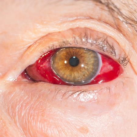 hemorragia: Close up de la gran hemorragia subconjuntival durante el examen de los ojos.