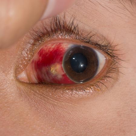 hemorrhage: Primo piano del grande emorragia sottocongiuntivale durante l'esame degli occhi.