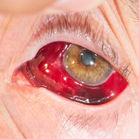 hemorrhage: Primo piano del grande Emorragia sottocongiuntivale durante l'esame degli occhi. Archivio Fotografico