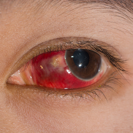 impair: close up of the large Subconjunctival Hemorrhage during eye examination. Stock Photo