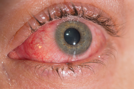 allergic: close up of the viral conjunctivitis during eye examination.