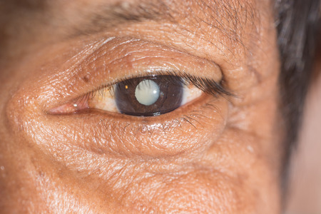 close up of the senile cataract during eye examination.