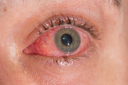 close up of the viral conjunctivitis during eye examination.