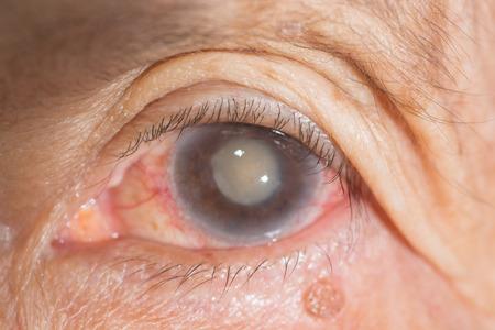 cataract: close up of the senile cataract during eye examination.