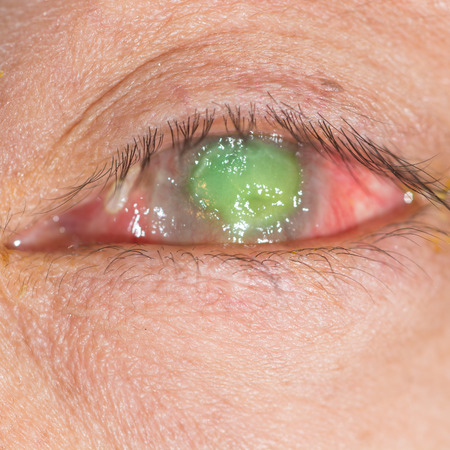 foreign bodies: close up of the corneal ulcer during eye examination.