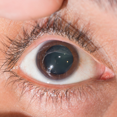 dilate: close up of the dilated pupil during eye examination.