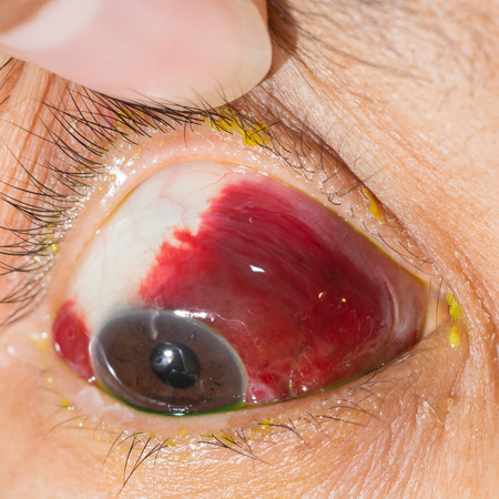 haemorrhage: close up of the large amount of sub conjunctival haemorrhage during eye examination. Stock Photo