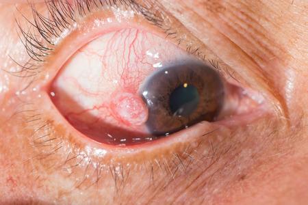 degeneration: close up of the nodular episcleritis during eye examination. Stock Photo
