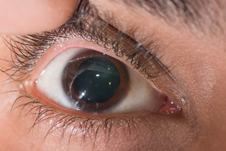 impair: close up of the dilated pupil during eye examination.