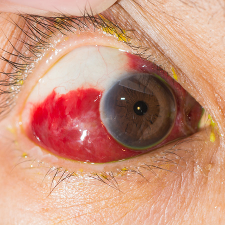 senile: close up of the large amount of sub conjunctival heamorrhage during eye examination.
