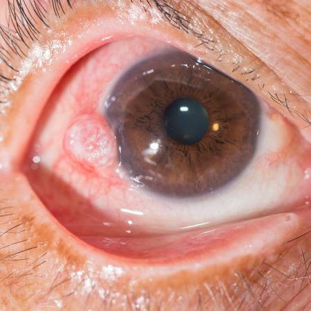 impair: close up of the nodular episcleritis during eye examination. Stock Photo