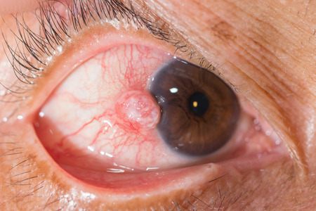 nodular: close up of the nodular episcleritis during eye examination. Stock Photo