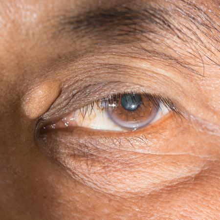 Close up of the eye during ophthalmic examination.