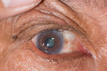 ophthalmic: Close up of the eye during ophthalmic examination.