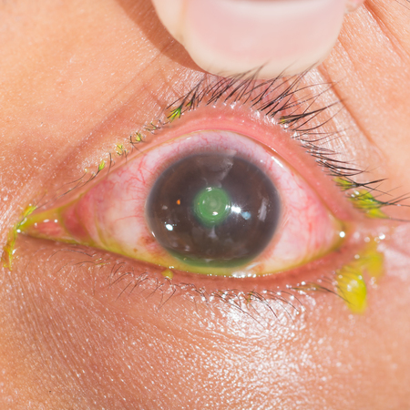 foreign bodies: Close up of the eye during ophthalmic examination.