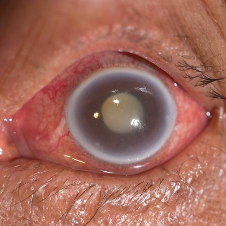 close up of the acute angle closure glaucoma during eye examination. Stock Photo