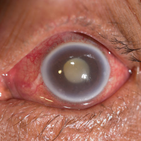 senile: close up of the acute angle closure glaucoma during eye examination. Stock Photo