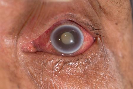acute angle: cerca del glaucoma agudo de �ngulo cerrado durante el examen de los ojos. Foto de archivo