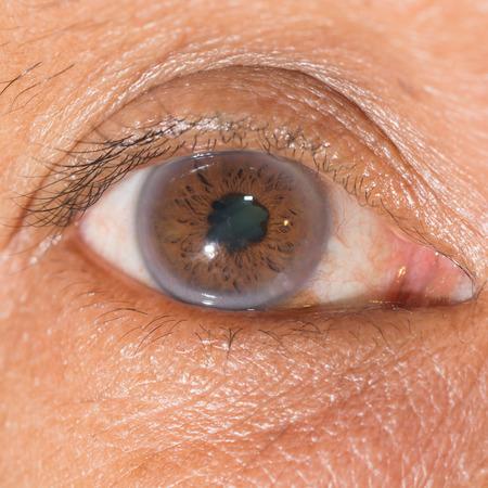senile: Close up of the posterior synechiae during eye examination.