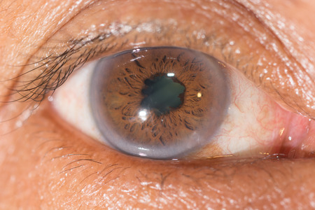 foreign bodies: Close up of the posterior synechiae during eye examination.