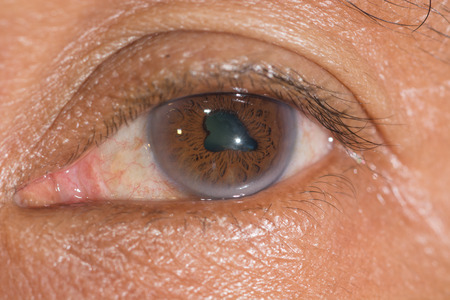impair: Close up of the posterior synechiae during eye examination.