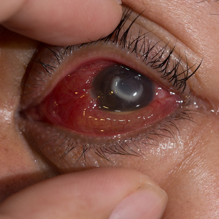 impair: Close up of the severe bacterial corneal ulcer during eye examination.