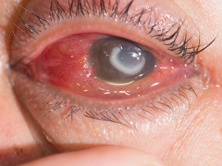 foreign bodies: Close up of the severe bacterial corneal ulcer during eye examination.
