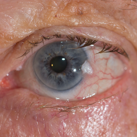 carcinoma: Close up of the suspicious conjuntival squamous cell carcinoma.