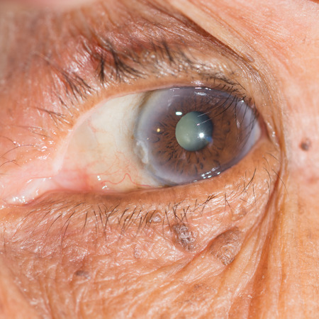 cataract: Close up of the  cataract during eye examination.