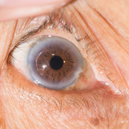 Close up of the  cataract during eye examination.