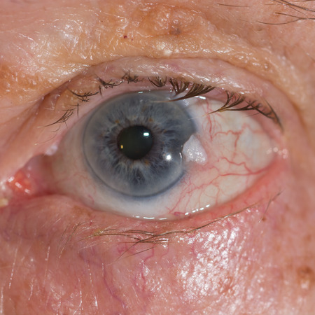 Close up of the suspicious conjuntival squamous cell carcinoma.