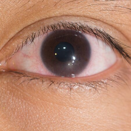 deficiency: Close up of the linbal stem cell deficiency during eye examination. Stock Photo