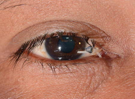 vision repair: close up of the post repaired canaliculi during eye examination.