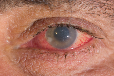 cornea: close up of the bee stinger in cornea during eye examination.