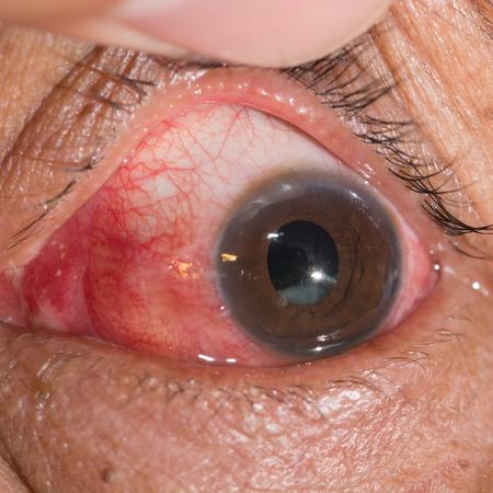 luxacion: Cerca de la subluxaci�n del cristalino durante el examen de los ojos. Foto de archivo