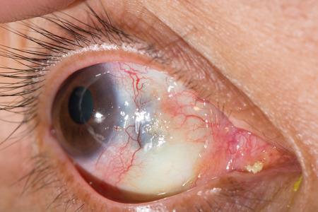 mmc: close up of the corneal melting during eye examination.