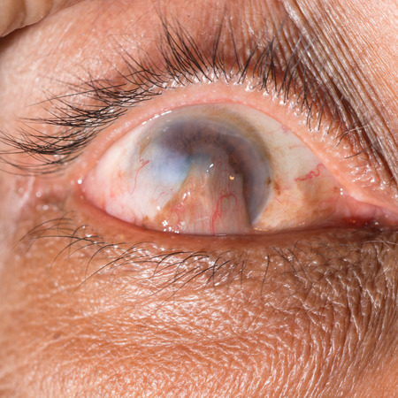 advance: close up of the advance pterygium during eye examination.