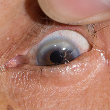 suture: close up of the corneal suture during eye examination. Stock Photo