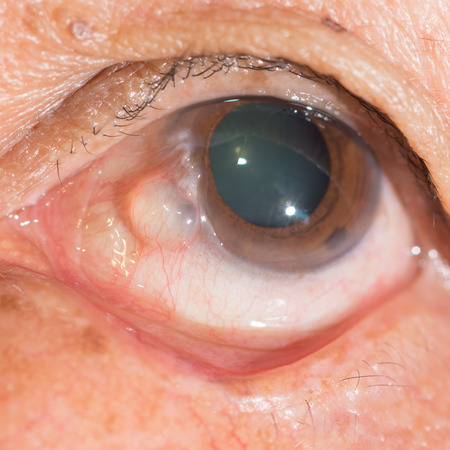 ocular diseases: close up of the conjunctival cyst during eye examination. Stock Photo